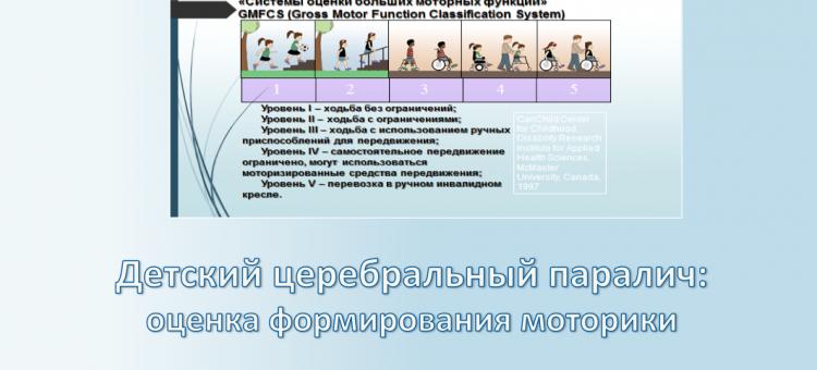 Детская неврология ДЦП