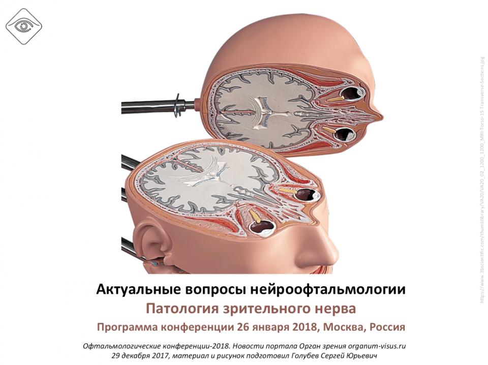 Нейроофтальмология Конференция в Москве Программа