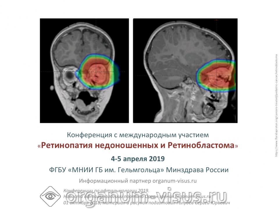 Детская офтальмология России Конференция в Москве 4-5 апреля 2019