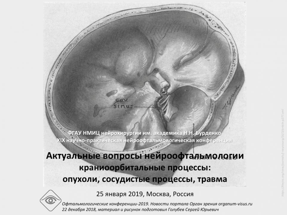 Нейроофтальмология Конференция 25 января 2019 Программа