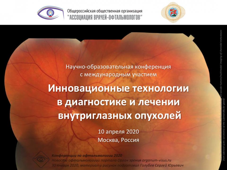 Офтальмоонкология Внутриглазные опухоли 10 апреля 2020