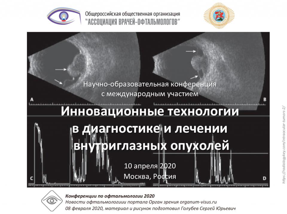 Офтальмоонкология Внутриглазные опухоли 10 апреля 2020 Анонс