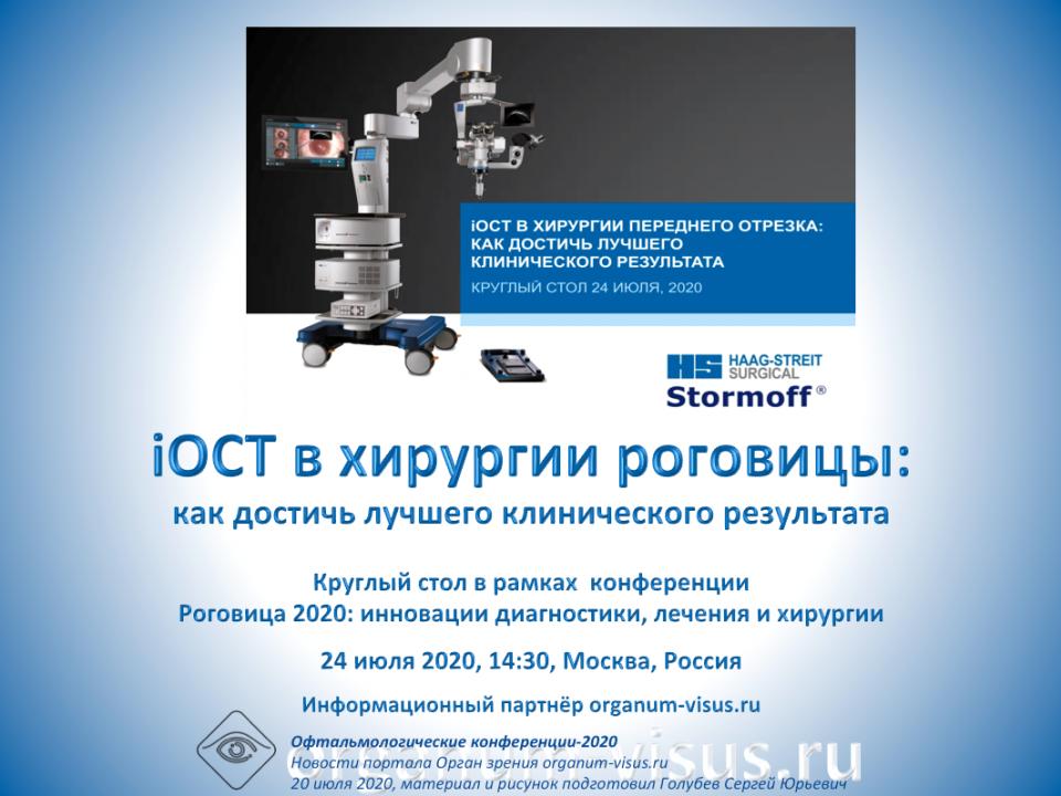 iOCT в хирургии роговицы Круглый стол 24 июля 2020