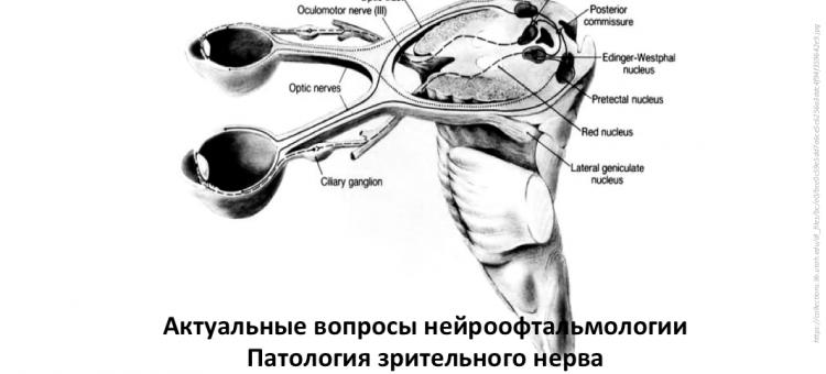 Нейроофтальмология Конференция в Москве