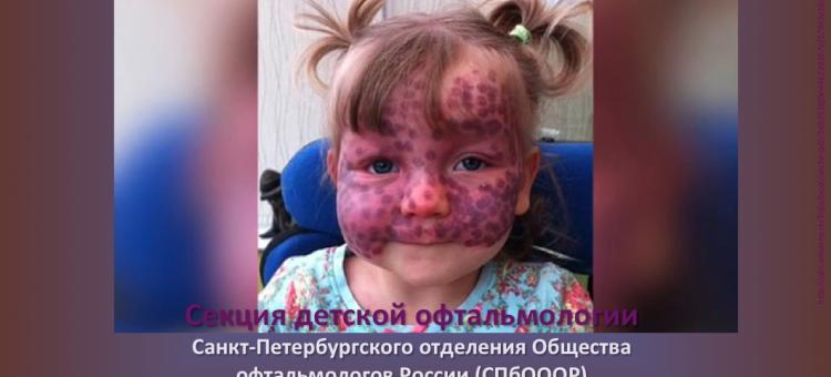 Детская офтальмология СПбОООР