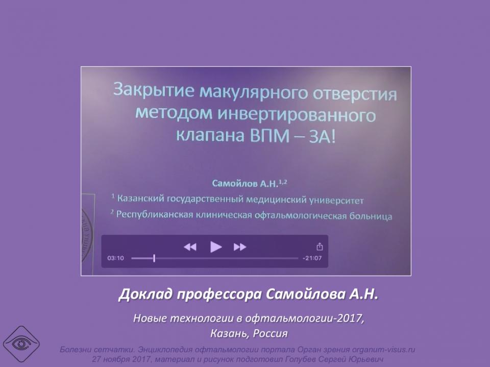Макулярное отверстие Самойлов А.Н.