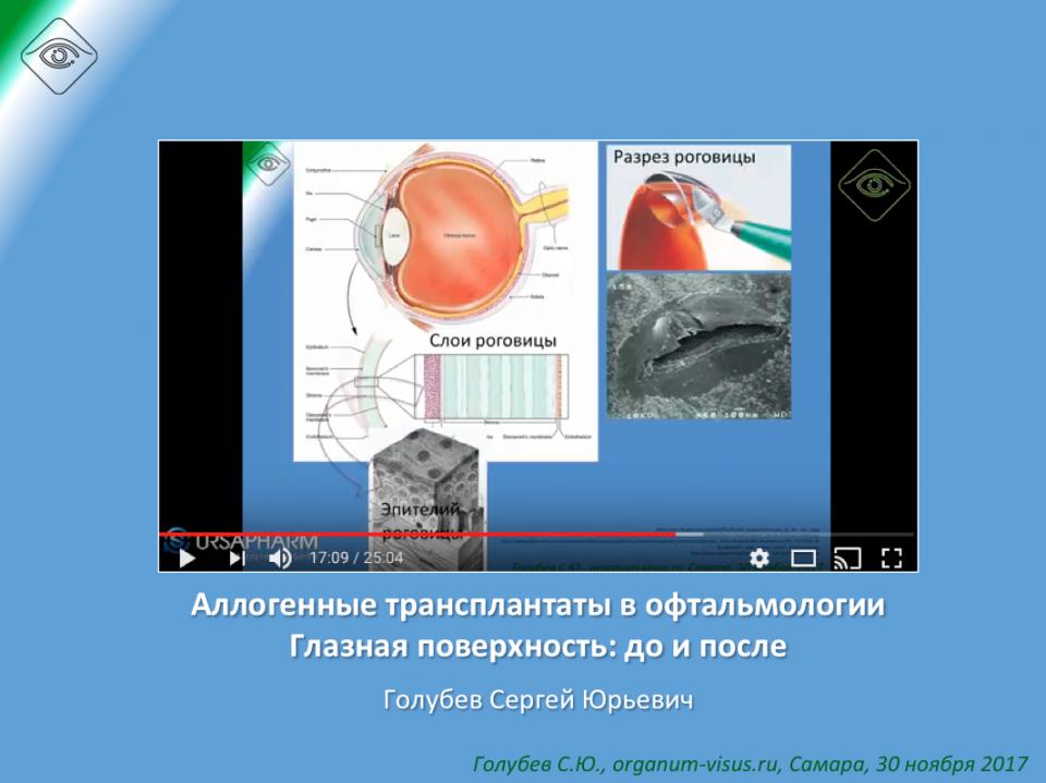 Офтальмопластика Глазная поверхность