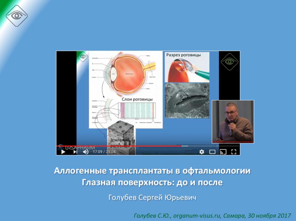 Офтальмопластика и Глазная поверхность
