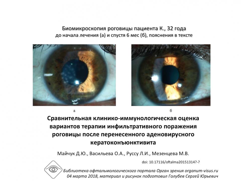 Рестасис Лечение аденовирусного кератоконъюнктивита