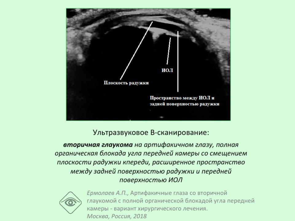Лечение глаукомы при артифакии