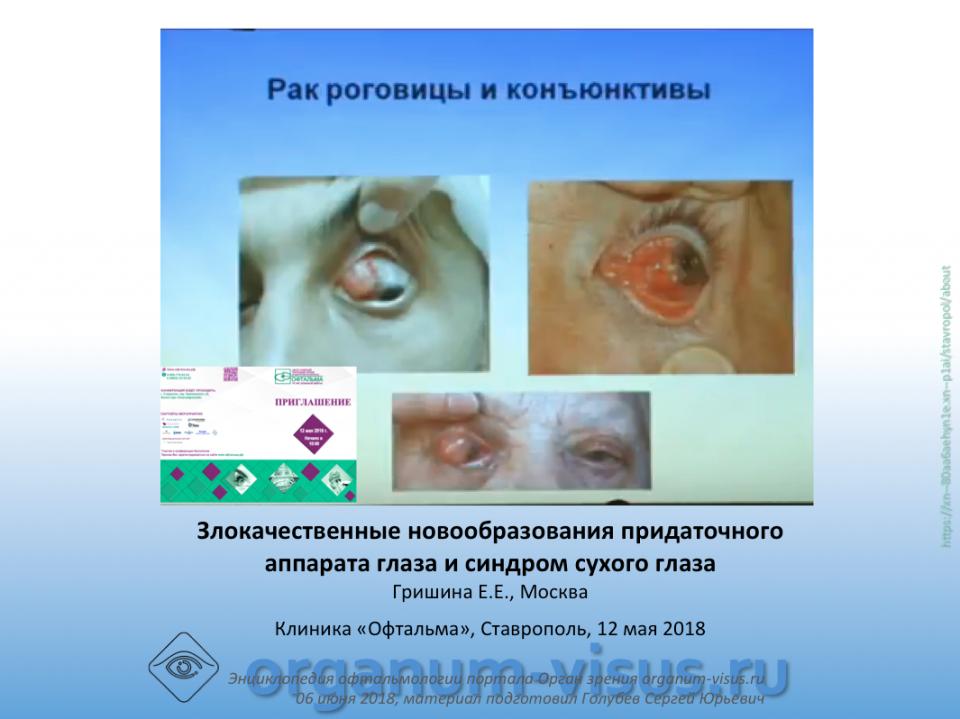 Злокачественные опухоли вспомогательного аппарата глаза, Гришина Е.Е.