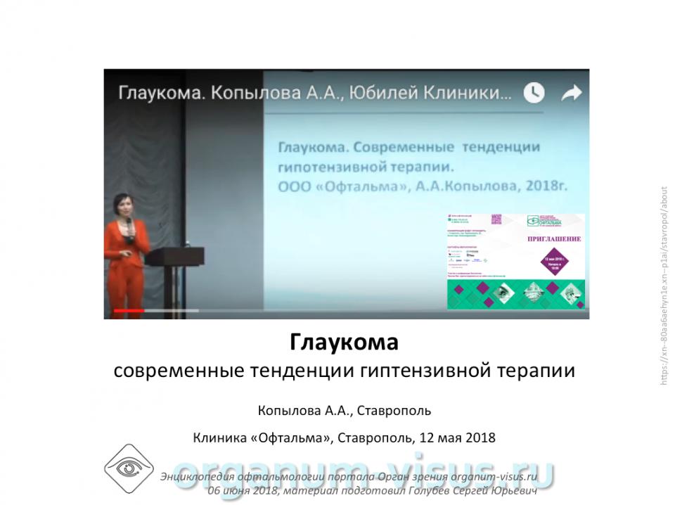 Глаукома Современные тенденции гипотензивной терапии, Копылова А.А.