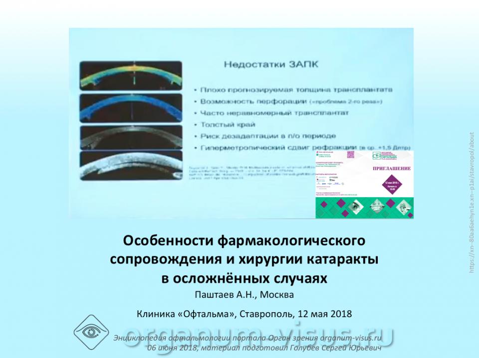 Хирургия катаракты Фрмакологическое сопровождение Паштаев А.Н.