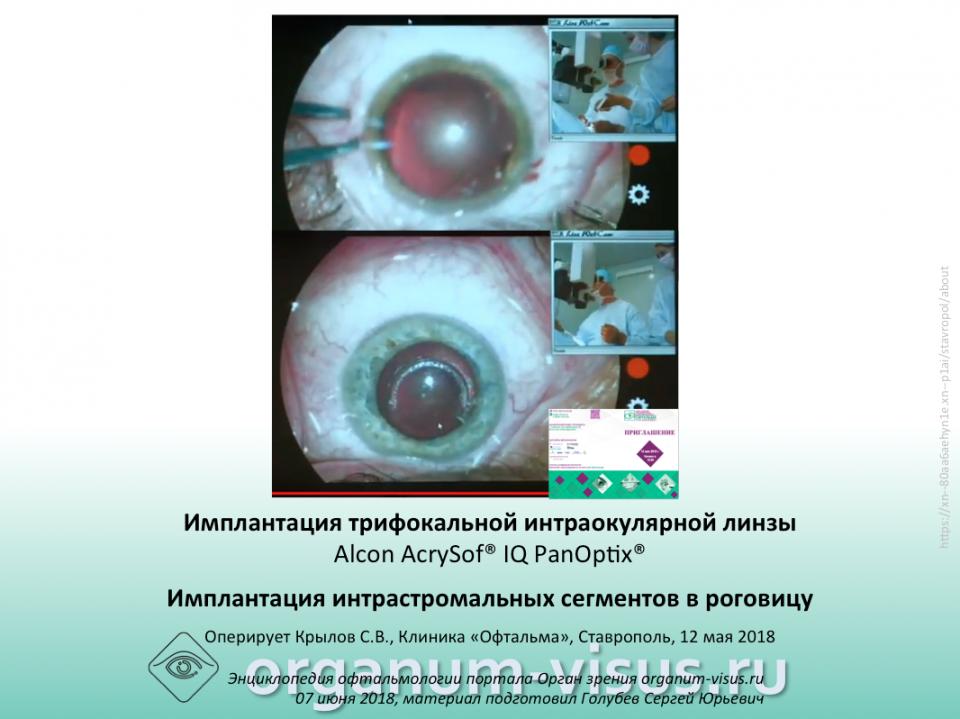 Катаракта Кератоконус: офтальмохирургия Ставрополя Живая хирургия