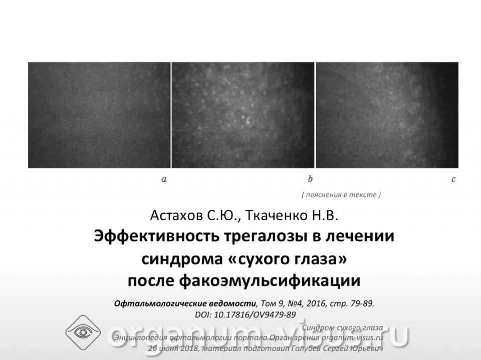 Сухой глаз Трегалоза после факоэмульсификации