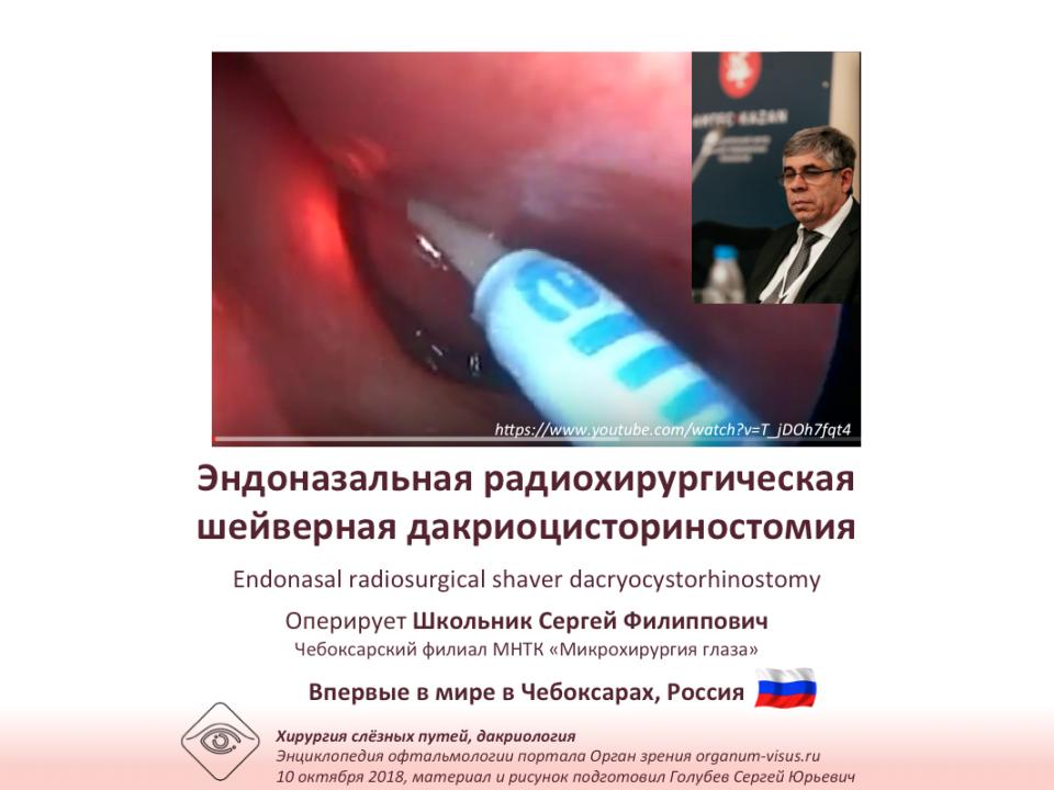Дакриоцисториностомия Эндоназальная радиохирургия Оперирует С.Ф.Школьник