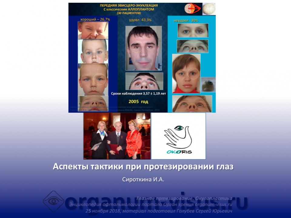 Глазное протезирование Аспекты тактики доклад И.А.Сироткина