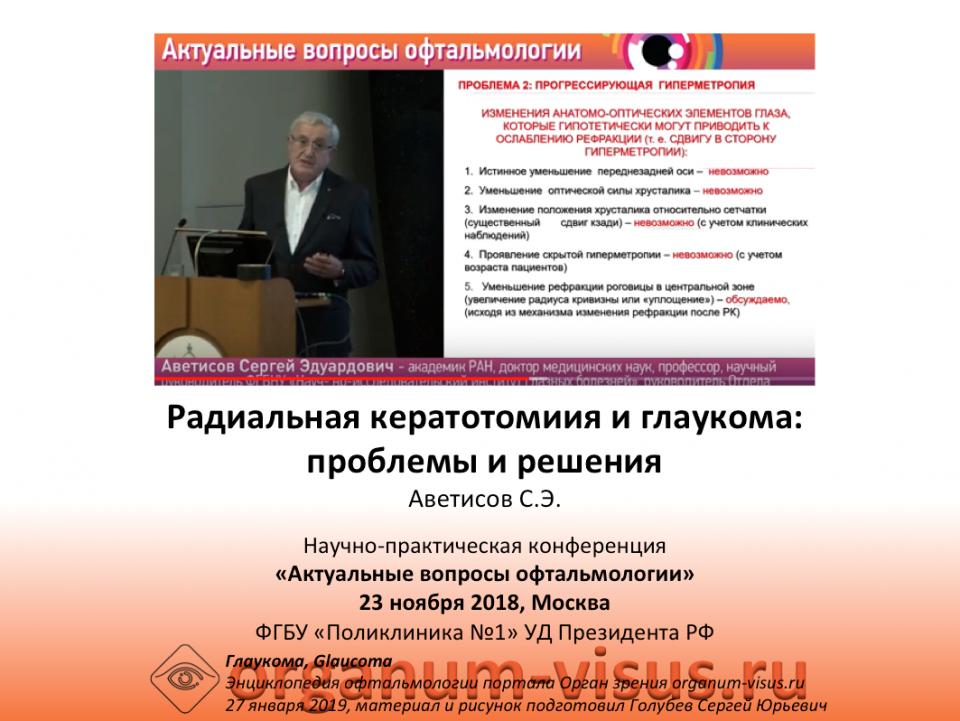 Радиальная кератотомия и глаукома Аветисов С.Э.