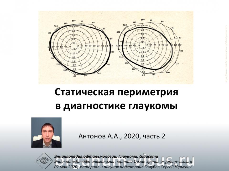 Статическая периметрия Глаукома Антонов А.А. видео 2