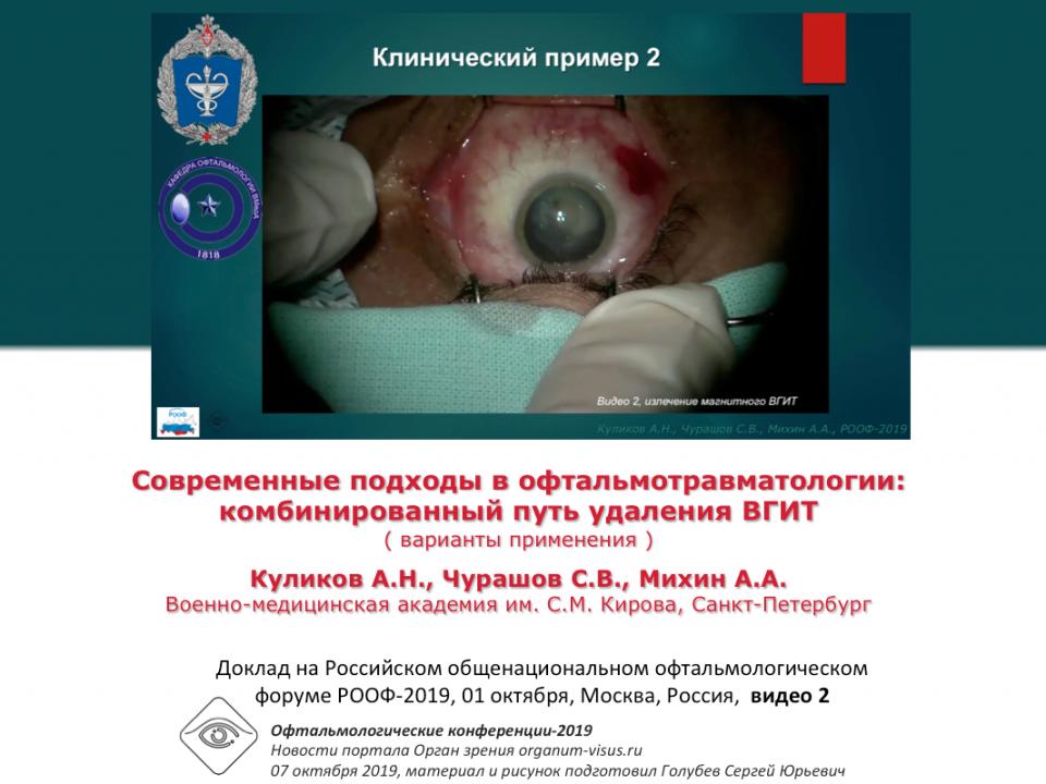 Травма глаза Удаление ВГИТ Видео 2 Куликов А.Н. с соавт