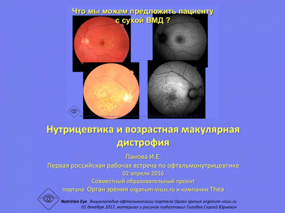 Офтальмонутрицевтика и возрастная макулярная дистрофия, Панова И.Е.