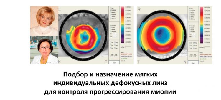 Контроль миопии Парфенова Н.П., Проскурина О.В.