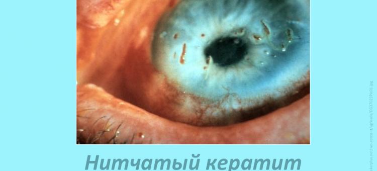 Лечение сухого глаза Нитчатый кератит