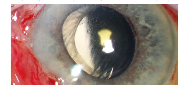 Вторичная глаукома на артифакичных глазах