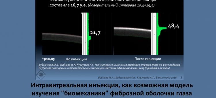 Глаукома ИВИ и биомеханика глаза Бубнова И.А.