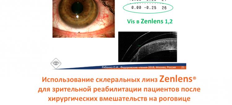 Склеральные линзы Zenlens® Зрительная реабилитация пациентов