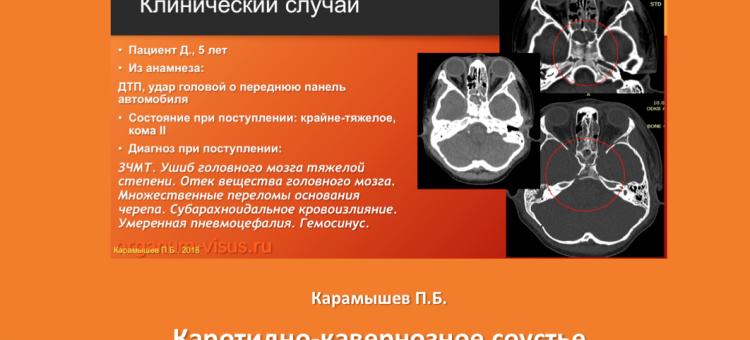 Каротидно кавернозное соустье Карамышев П.Б.