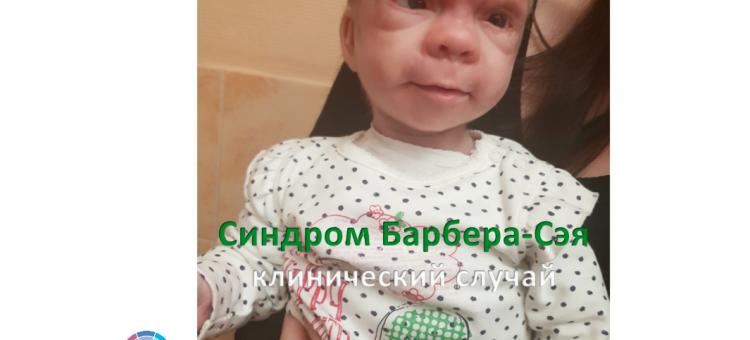 Офтальмогенетика Синдром Барбера-Сэя