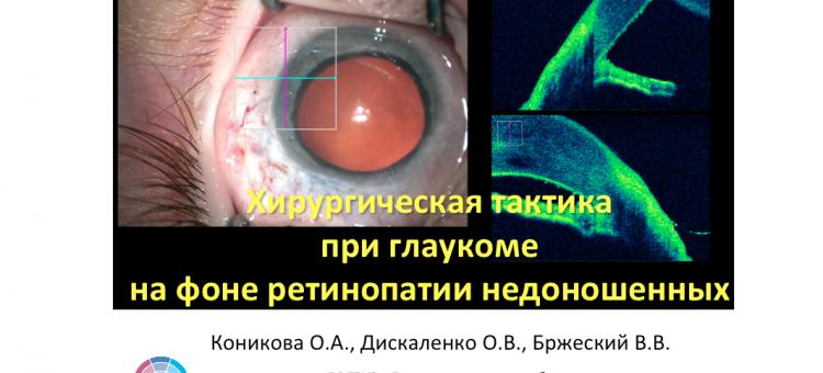 Глаукома и ретинопатия недоношенных