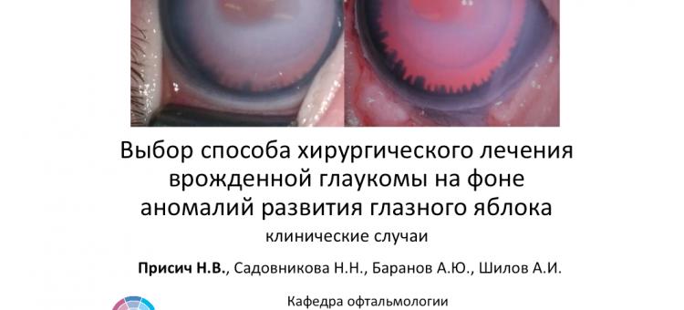 Глаукома и аниридия Тактика лечения