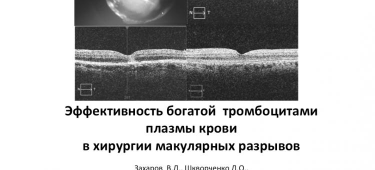 Богатая тромбоцитами плазма крови Хирургия макулярных разрывов