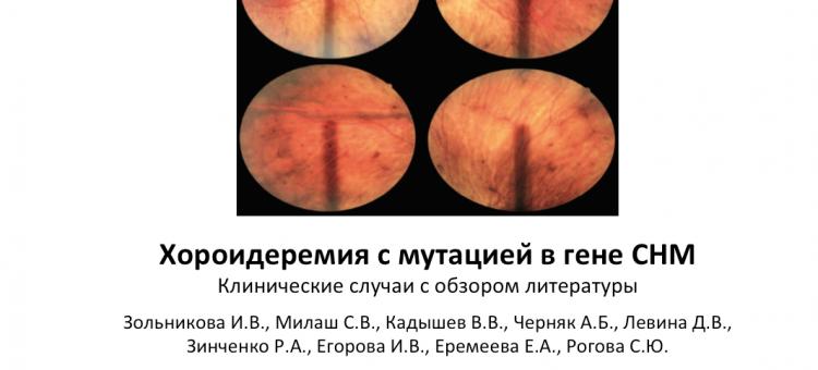 Хороидеремия с мутацией в гене CHM Клинические случаи
