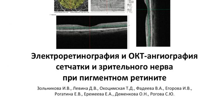 Пигментный ретинит ЭРГ и ОКТангио Зольникова И.В. с соавт