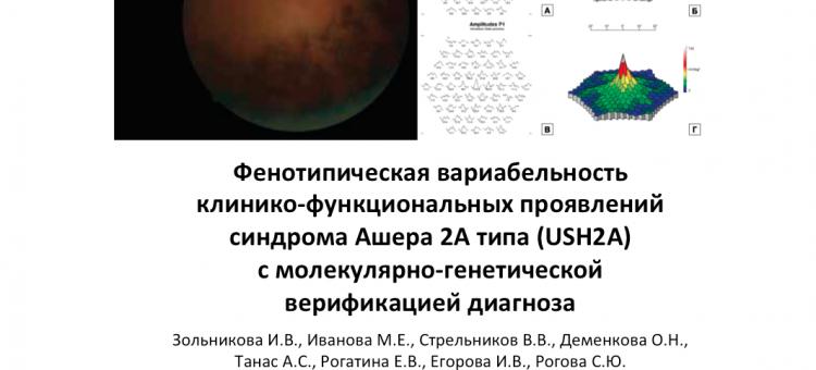 Синдрома Ашера 2А типа USH2A Фенотипическая вариабельность