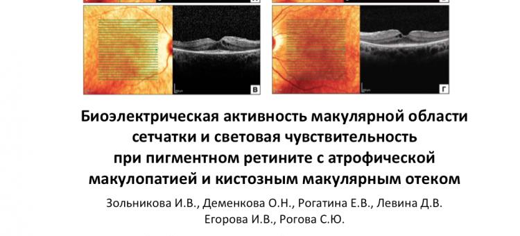 Биоэлектрическая активность макулярной области при пигментном ретините