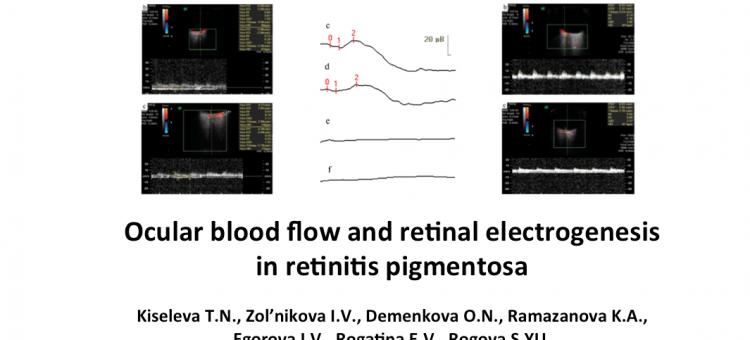 Ocular blood flow and retinal electrogenesis in retinitis pigmentosa