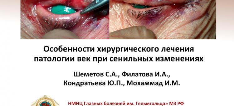 Офтальмопластика Сенильные изменения век
