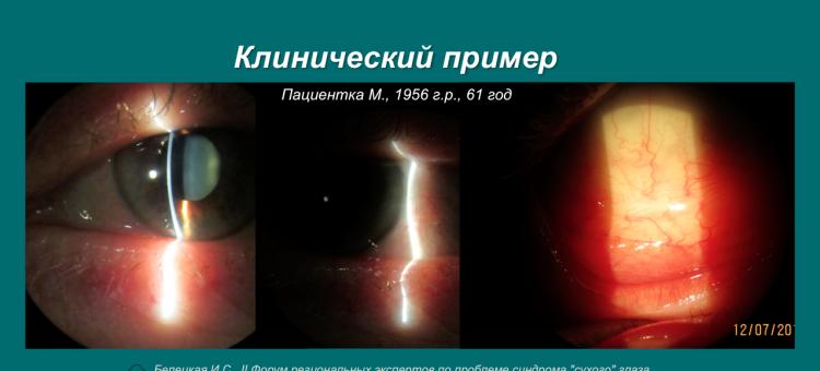 Рестасис Эндокринная патология Постменопауза