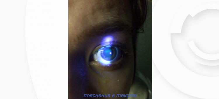 Сухой глаз Лечение Циклоспорин 0,05%