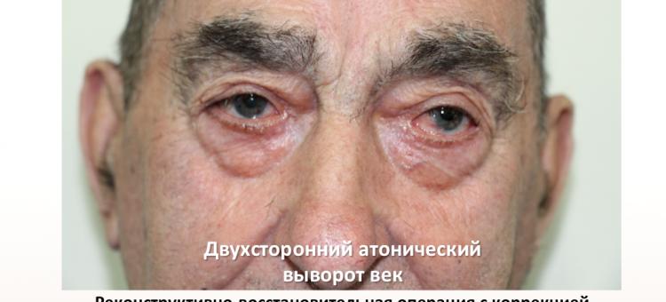 Офтальмопластика Атонический выворот век