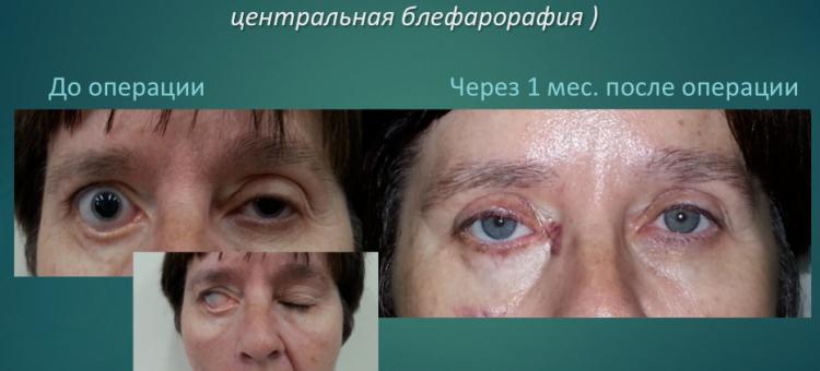 Офтальмопластика Лечение заболеваний век