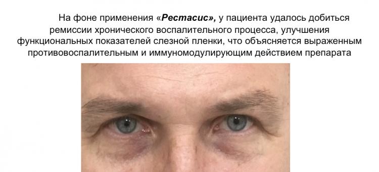 Циклоспорин А 0,05% Вторичный сухой глаз