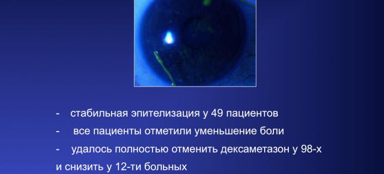 Сухой глаз Средняя степень тяжести Лечение