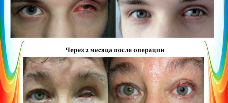 Офтальмопластика Восстановление век и Эвисцерация