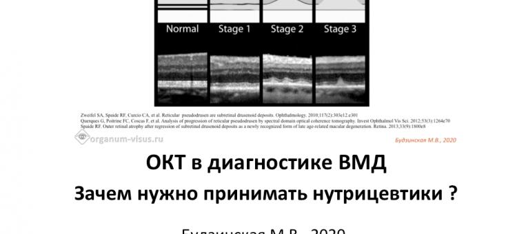 ВМД ОКТ диагностика и нутрицевтики