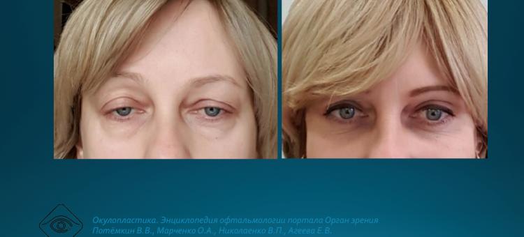 Офтальмопластика Мюллерэктомия в лечении блефароптоза